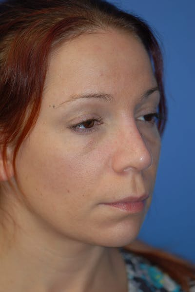 Rhinoplasty Gallery - Patient 5883741 - Image 3