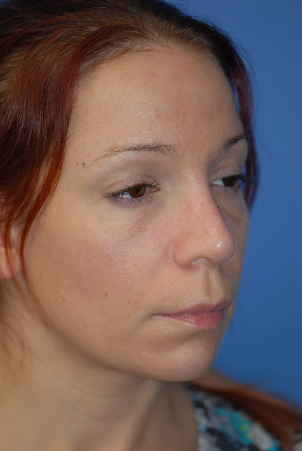Rhinoplasty Gallery - Patient 5883741 - Image 2
