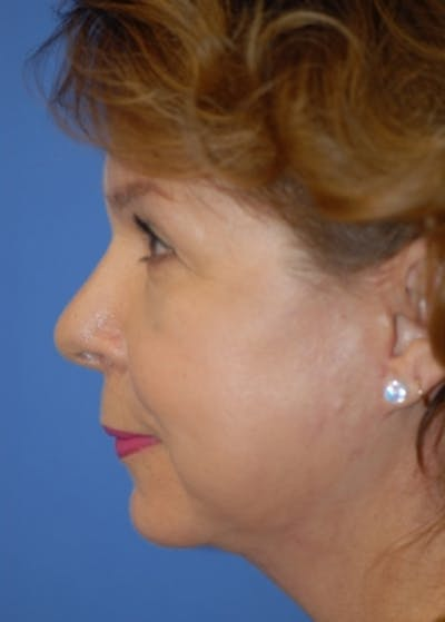 Facelift and Mini Facelift Gallery - Patient 5883739 - Image 4
