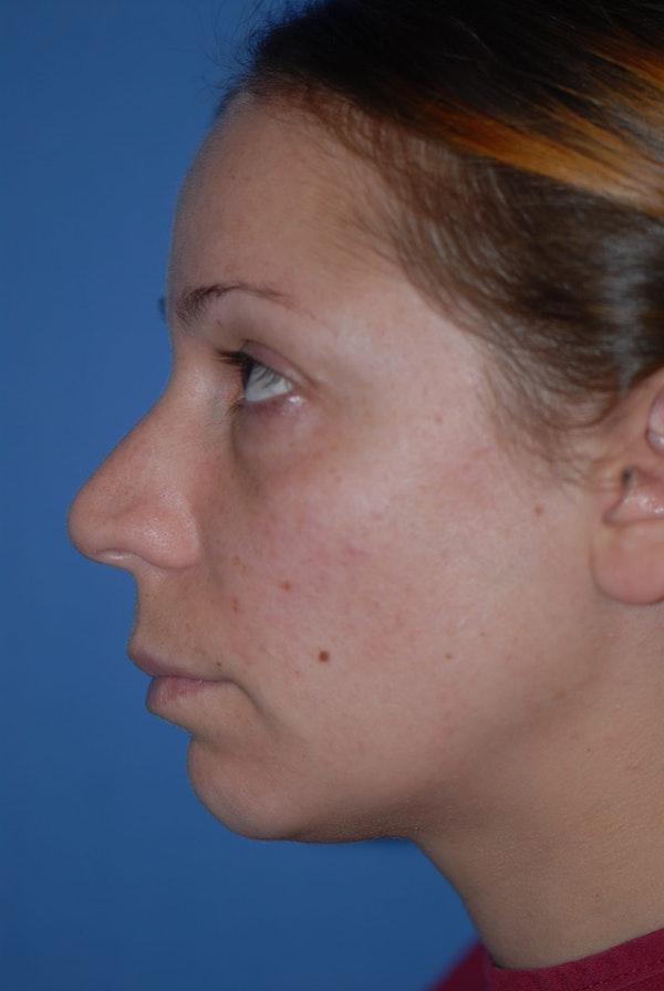 Rhinoplasty Gallery - Patient 5883741 - Image 3