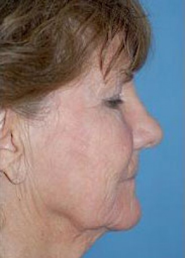 Facelift and Mini Facelift Gallery - Patient 5883742 - Image 1