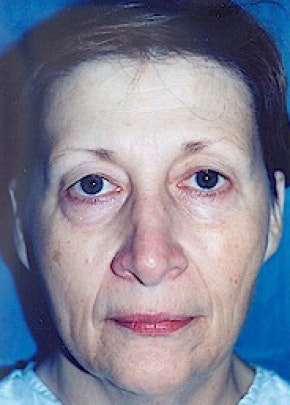 Eyelid Surgery Browlift Gallery - Patient 5883743 - Image 1