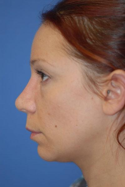 Rhinoplasty Gallery - Patient 5883741 - Image 4