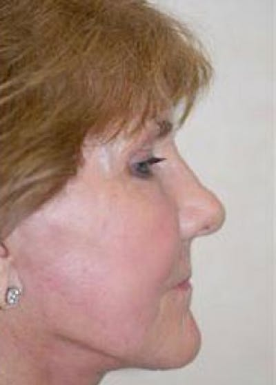 Facelift and Mini Facelift Gallery - Patient 5883742 - Image 6