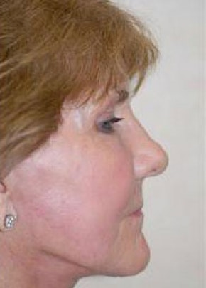 Facelift and Mini Facelift Gallery - Patient 5883742 - Image 2