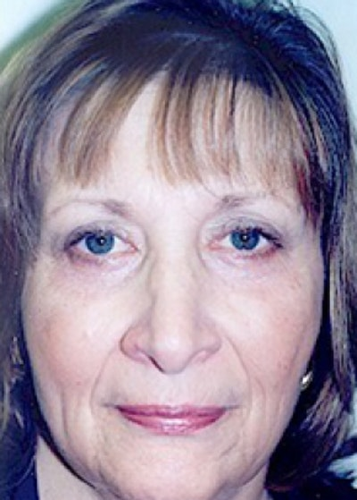 Eyelid Surgery Browlift Gallery - Patient 5883743 - Image 2