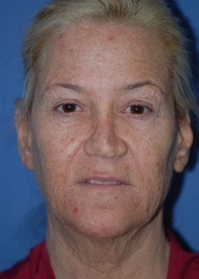 Facelift and Mini Facelift Gallery - Patient 5883747 - Image 1