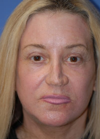 Facelift and Mini Facelift Gallery - Patient 5883747 - Image 7