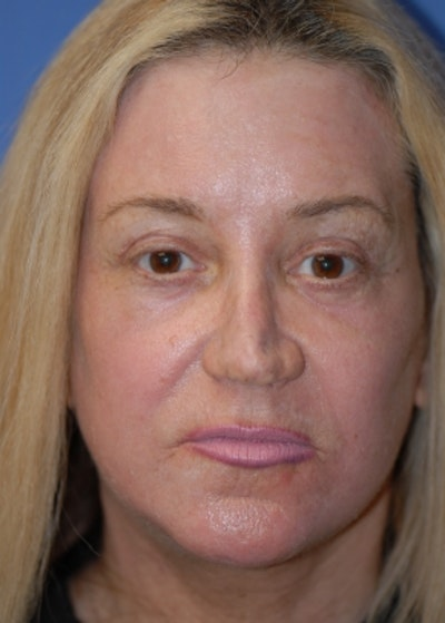 Facelift and Mini Facelift Gallery - Patient 5883747 - Image 2