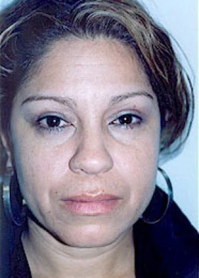 Eyelid Surgery Browlift Gallery - Patient 5883745 - Image 2