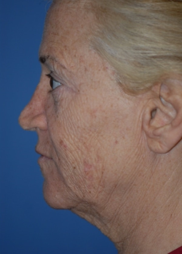 Facelift and Mini Facelift Gallery - Patient 5883747 - Image 3