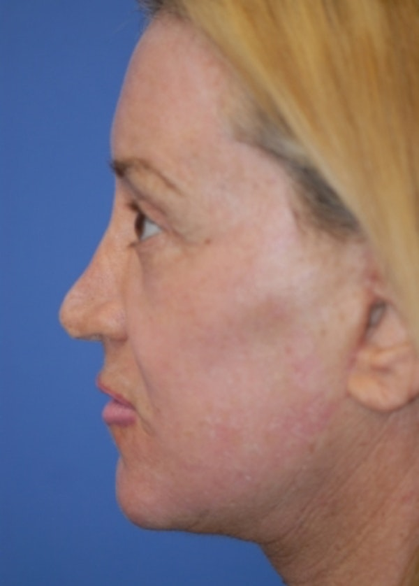 Facelift and Mini Facelift Gallery - Patient 5883747 - Image 4