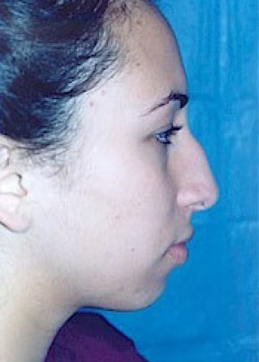 Rhinoplasty Gallery - Patient 5883749 - Image 1
