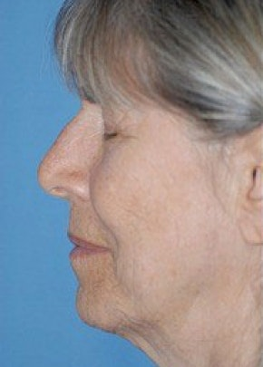 Facelift and Mini Facelift Gallery - Patient 5883750 - Image 1