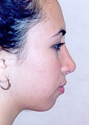 Rhinoplasty Gallery - Patient 5883749 - Image 2