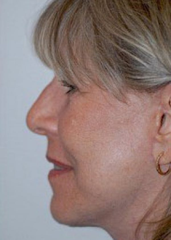 Facelift and Mini Facelift Gallery - Patient 5883750 - Image 2