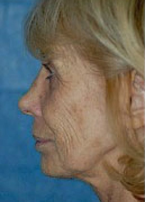 Laser Wrinkle Removal Gallery - Patient 5883752 - Image 1