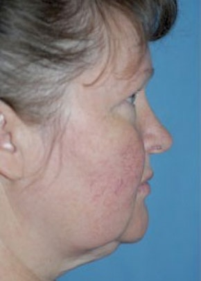 Facelift and Mini Facelift Gallery - Patient 5883753 - Image 1