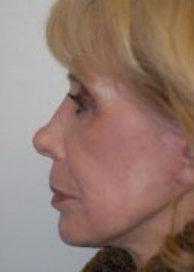 Laser Wrinkle Removal Gallery - Patient 5883752 - Image 2