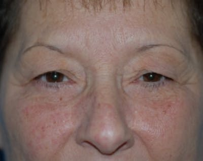 Eyelid Surgery Browlift Gallery - Patient 5883754 - Image 1