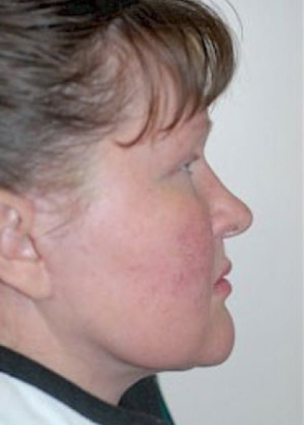 Facelift and Mini Facelift Gallery - Patient 5883753 - Image 2