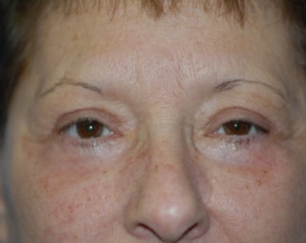 Eyelid Surgery Browlift Gallery - Patient 5883754 - Image 2