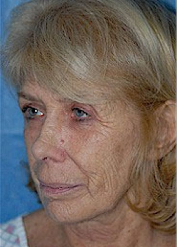 Laser Wrinkle Removal Gallery - Patient 5883756 - Image 1