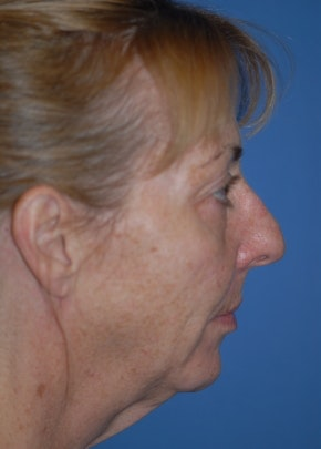 Facelift and Mini Facelift Gallery - Patient 5883766 - Image 1