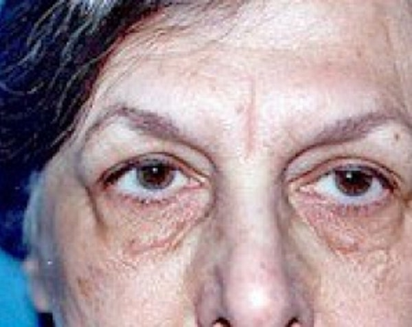 Eyelid Surgery Browlift Gallery - Patient 5883757 - Image 1