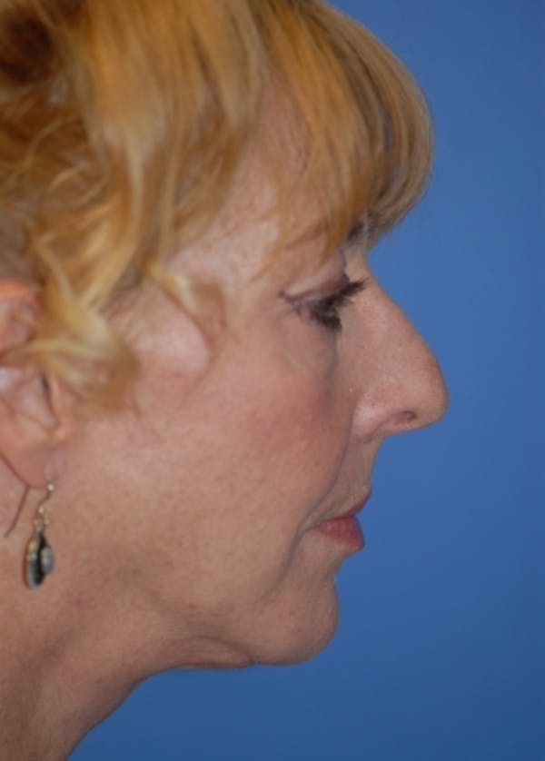 Facelift and Mini Facelift Gallery - Patient 5883766 - Image 2
