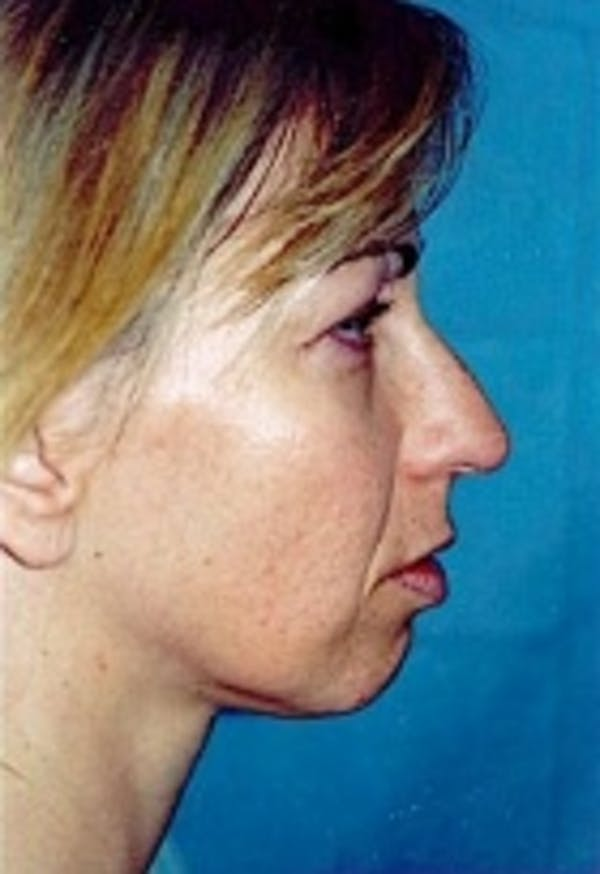 Rhinoplasty Gallery - Patient 5883758 - Image 1