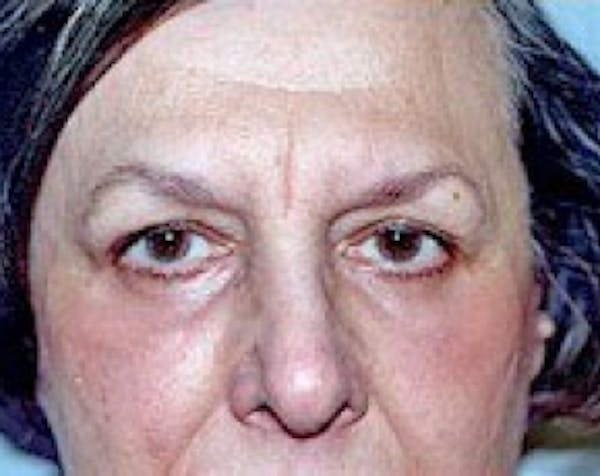 Eyelid Surgery Browlift Gallery - Patient 5883757 - Image 2