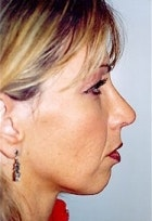 Rhinoplasty Gallery - Patient 5883758 - Image 2