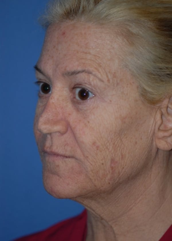 Laser Wrinkle Removal Gallery - Patient 5883762 - Image 1