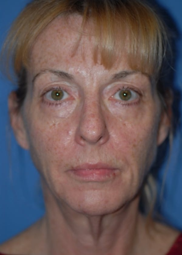 Facelift and Mini Facelift Gallery - Patient 5883766 - Image 3
