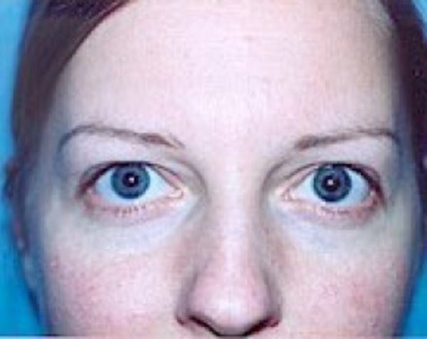 Eyelid Surgery Browlift Gallery - Patient 5883765 - Image 1