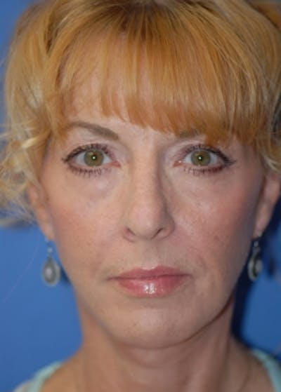 Facelift and Mini Facelift Gallery - Patient 5883766 - Image 4