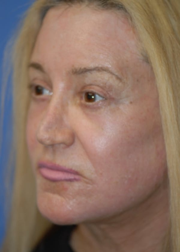 Laser Wrinkle Removal Gallery - Patient 5883762 - Image 2