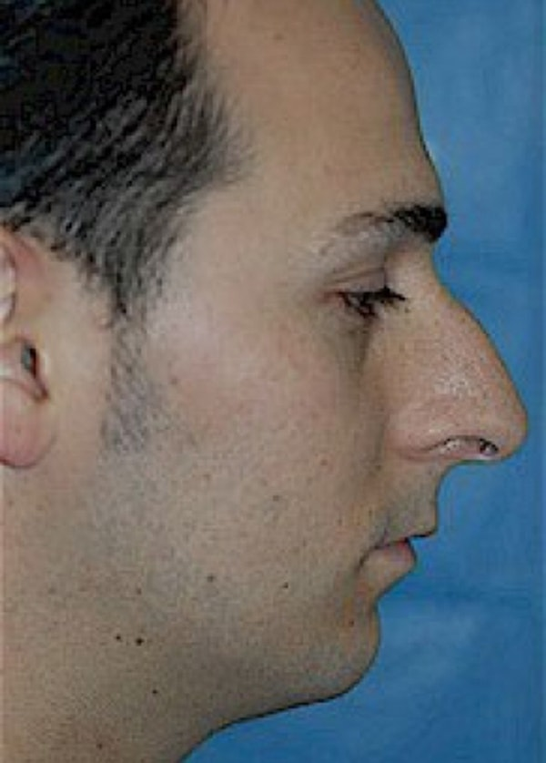 Rhinoplasty Gallery - Patient 5883767 - Image 1