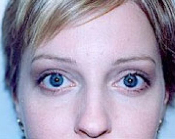 Eyelid Surgery Browlift Gallery - Patient 5883765 - Image 2