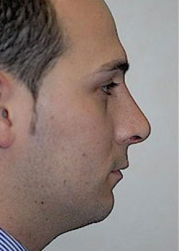 Rhinoplasty Gallery - Patient 5883767 - Image 2