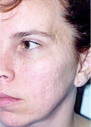 Laser Wrinkle Removal Gallery - Patient 5883769 - Image 1