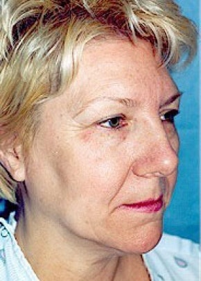 Facelift and Mini Facelift Gallery - Patient 5883772 - Image 1