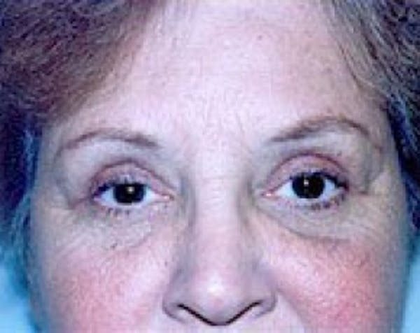 Eyelid Surgery Browlift Gallery - Patient 5883768 - Image 2