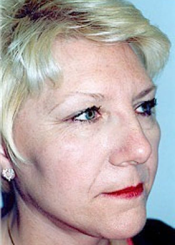 Facelift and Mini Facelift Gallery - Patient 5883772 - Image 2