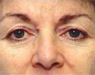 Eyelid Surgery Browlift Gallery - Patient 5883770 - Image 1