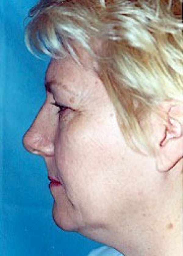 Facelift and Mini Facelift Gallery - Patient 5883772 - Image 3