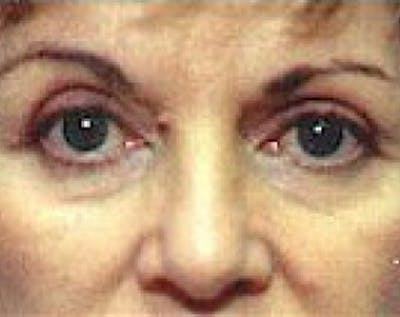 Eyelid Surgery Browlift Gallery - Patient 5883770 - Image 2