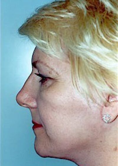 Facelift and Mini Facelift Gallery - Patient 5883772 - Image 4