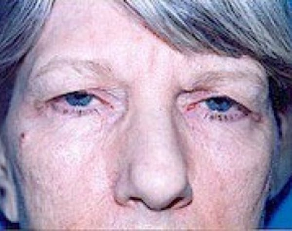 Eyelid Surgery Browlift Gallery - Patient 5883777 - Image 1
